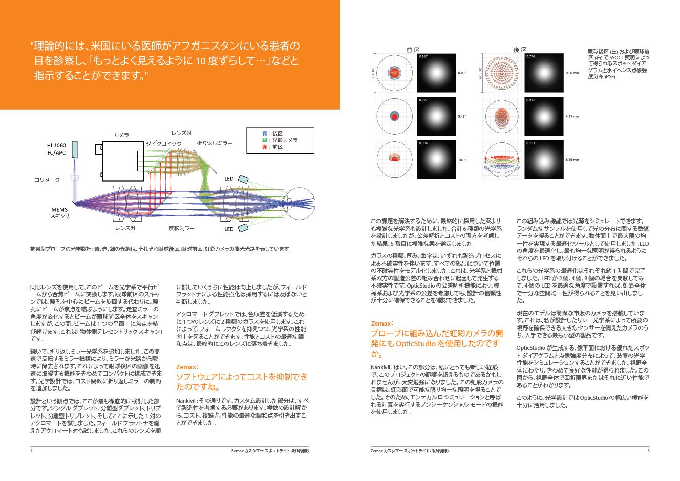 画期的な携帯型眼球撮像デバイスの開発に採用された OpticStudio Sneak Preview